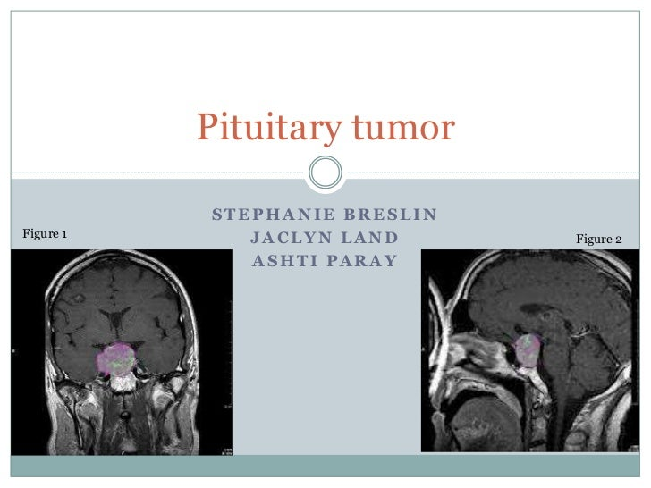 Pituitary tumor           STEPHANIE BRESLINFigure 1      JACLYN LAND      Figure 2              ASHTI PARAY