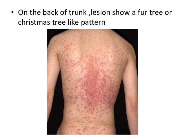 Christmas Tree Like Pattern With Christmas Tree Rash. Pityriasis Rosea ...