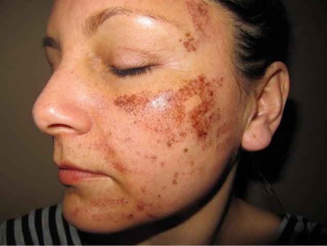 Get Rid Of Tinea Versicolor AKAWhite Spots – Sun Spots In 1 To 2       Weeks Guaranteedhttp://Tinea-Versicolor-Treatment.p...