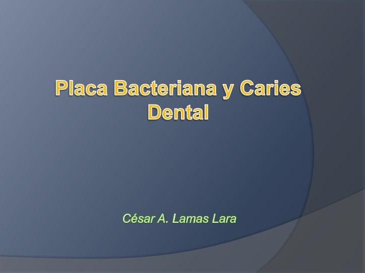 Placa Bacteriana y Caries Dental<br />César A. Lamas Lara<br />