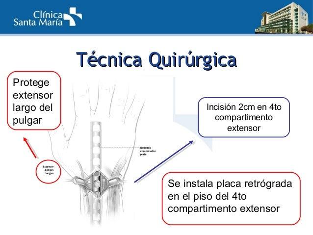 TTécnica Quirúrgicaécnica Quirúrgica Tercera incisión permite reducción e injerto óseo 1ro 3ro 2do  Tracción: largo del r...