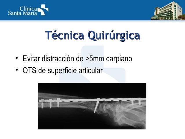 PostoperatorioPostoperatorio • Ejercicios de dedos • Utilización de la mano • < 2,5Kg de peso • Retiro con consolidación R...