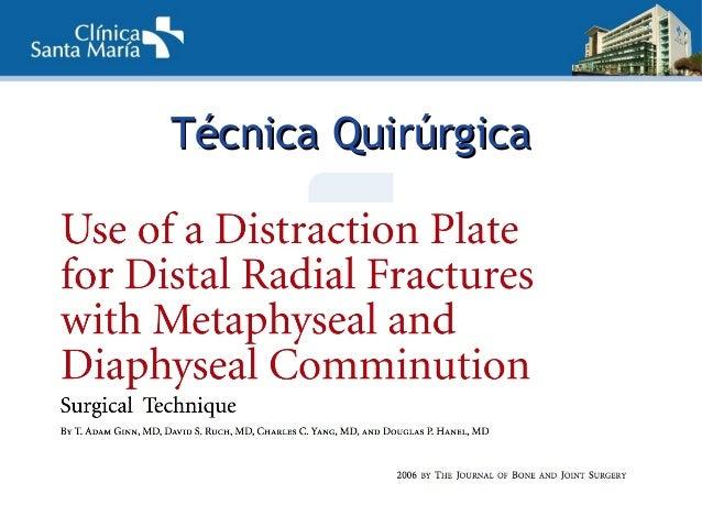 TTécnica Quirúrgicaécnica Quirúrgica • Placa DCP 3,5mm standard  DISTRACCIÓN