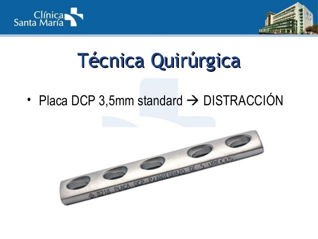 TTécnica Quirúrgicaécnica Quirúrgica 4 – 6cm dorsoradial 4 cm proximal a Fx (3 tornillos) 4cm en diáfisis 3er MTC