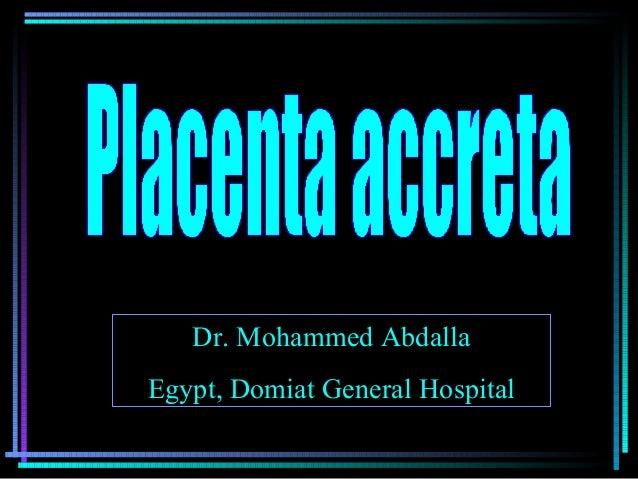 Dr. Mohammed AbdallaDr. Mohammed Abdalla Egypt, Domiat General HospitalEgypt, Domiat General Hospital