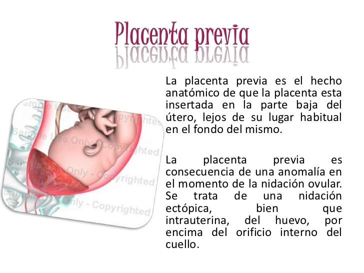 placenta previa Placenta previa is a complication of pregnancy that causes the placenta to tear away from the uterus find out what the symptoms are and how it's treated.