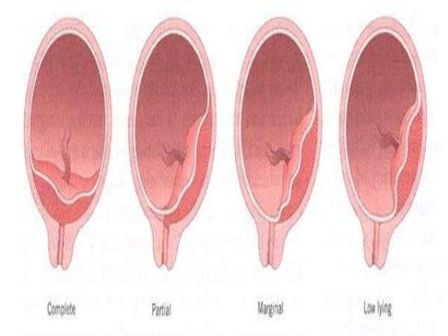 orgasm and placenta previa