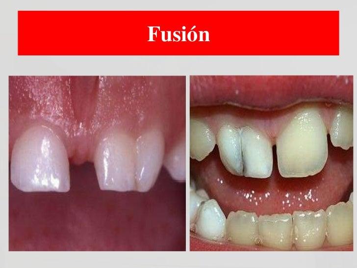 Mas                       frecuenteClasificación Clínica de Labio           leporino