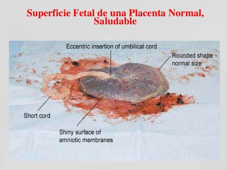 Placenta Circunvalada