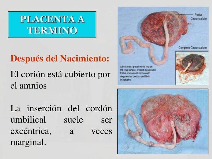 Placenta en Raqueta