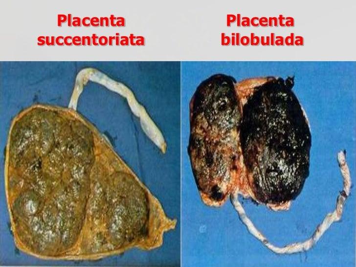 Anormalidades PlacentariasAdherencia anormal de las vellosidades coriónicas a  una parte o la totalidad de la pared uterin...