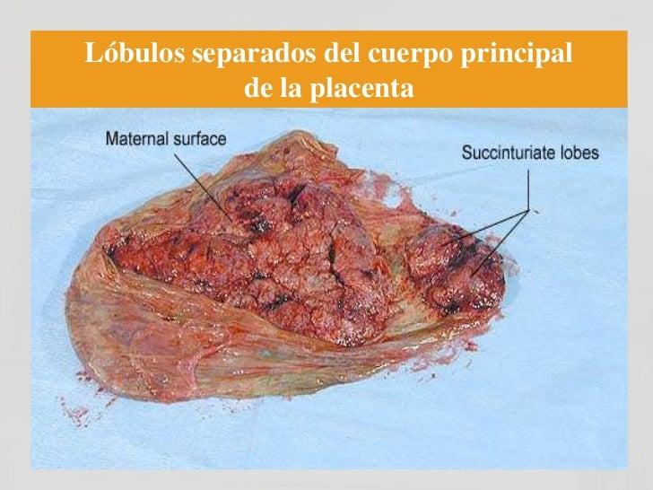 Enfermedad Trofoblástica de la            Gestación• Incidencia: 1 en 500-2000 embarazos (varía  según la región geográfic...