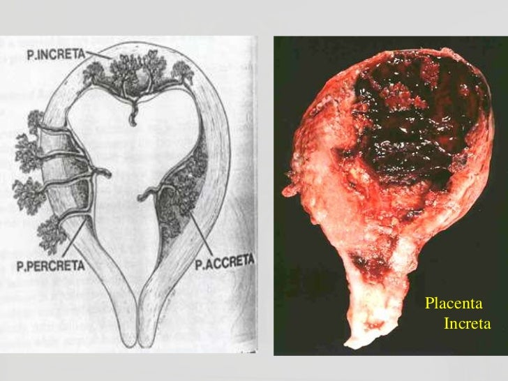 Corioangioma placentario