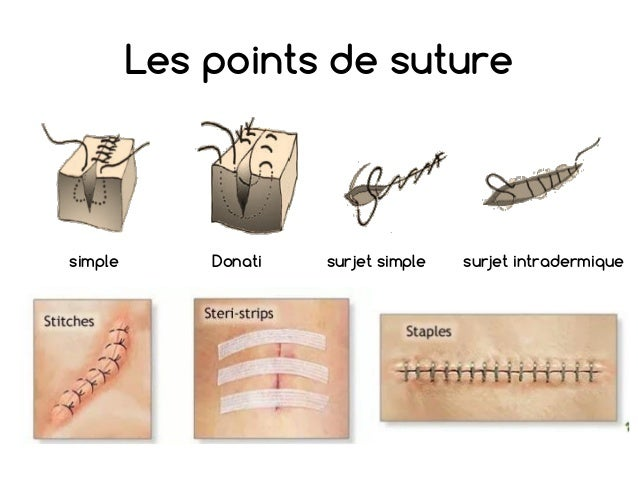 points de suture cicatrisation