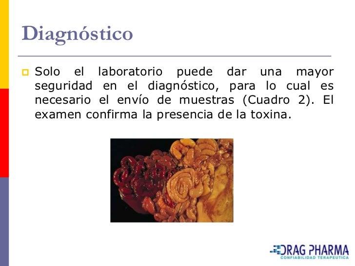 Diagnóstico    Solo el laboratorio puede dar una mayor     seguridad en el diagnóstico, para lo cual es     necesario el ...