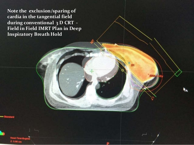 Breast Cancer Radiation Therapy Rt Plan Evaluation