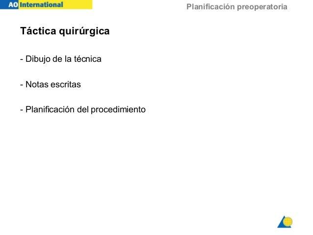 Planificación preoperatoria Táctica quirúrgica - Dibujo de la técnica - Notas escritas - Planificación del procedimiento