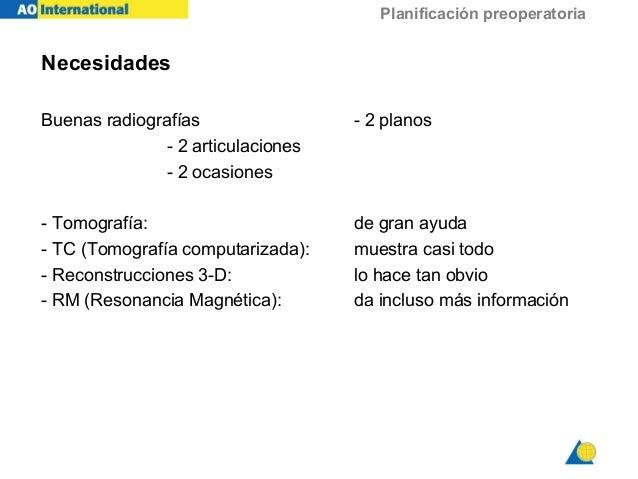 Planificación preoperatoria Necesidades Buenas radiografías - 2 planos - 2 articulaciones - 2 ocasiones - Tomografía: de g...