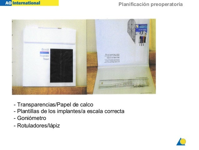 Planificación preoperatoria - Transparencias/Papel de calco - Plantillas de los implantes/a escala correcta - Goniómetro -...