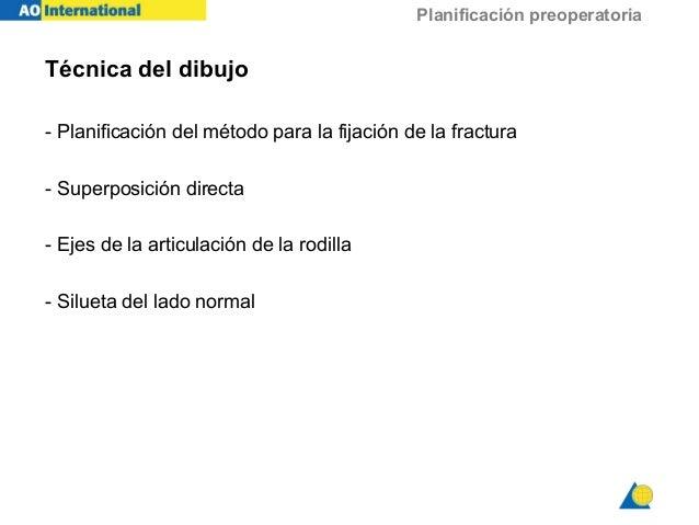 Planificación preoperatoria Técnica del dibujo - Planificación del método para la fijación de la fractura - Superposición ...