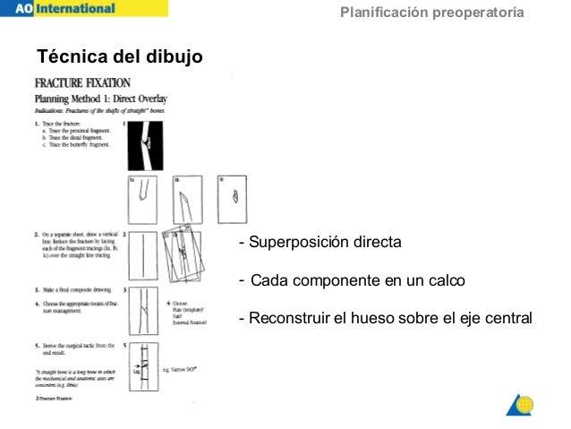 Planificación preoperatoria - Superposición directa - Cada componente en un calco - Reconstruir el hueso sobre el eje cent...