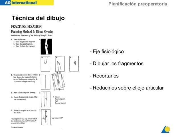 Planificación preoperatoria Técnica del dibujo - Eje fisiológico - Dibujar los fragmentos - Recortarlos - Reducirlos sobre...