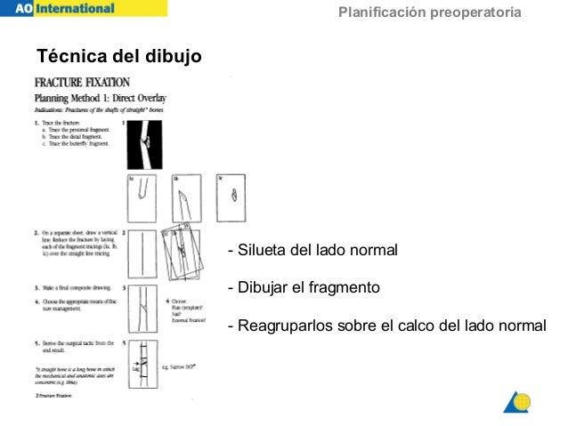 Planificación preoperatoria Técnica del dibujo - Silueta del lado normal - Dibujar el fragmento - Reagruparlos sobre el ca...