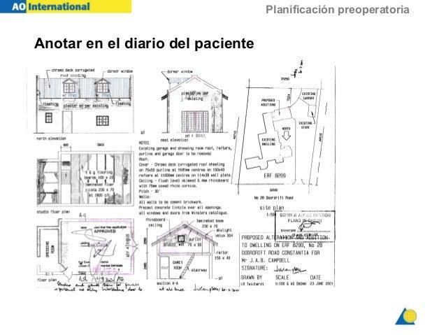 Planificación preoperatoria Anotar en el diario del paciente