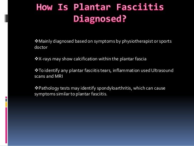 Plantar fasciitis - causes, symptoms and treatments
