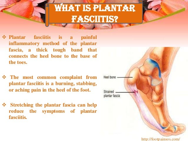 plantar fasciitis foot pain treatment, Human Body