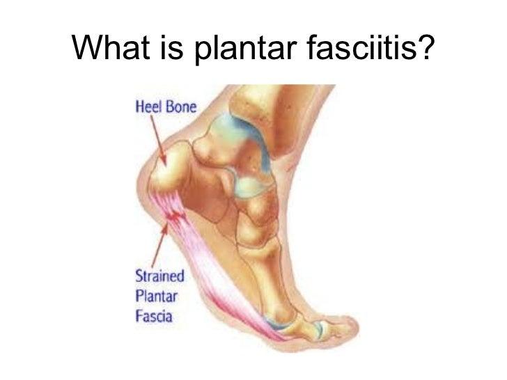plantar fasciitis presentation, Skeleton