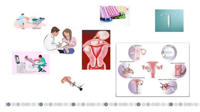 Suplemento monográfico sobre miomas uterinos 1. Uterine myomas: clinical impact and pathophysiological bases. 2. Diagnosti...