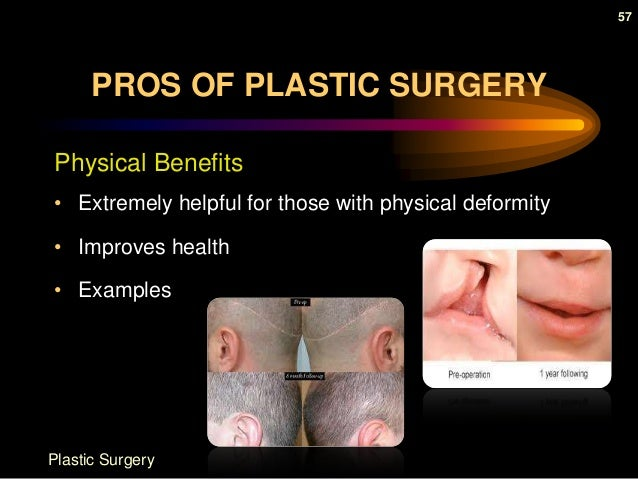 plastic advantages and disadvantages essays Free plastic surgery papers, essays,  the risks of cosmetic surgery - are you aware of the risks and disadvantages  strong essays: plastic and.