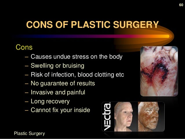 plastic surgery pros and cons debate 5 benefits of plastic surgery july 2, 2015 norman h rappaport md plastic surgery is typically done to improve one's appearance, which is also perceived as the.