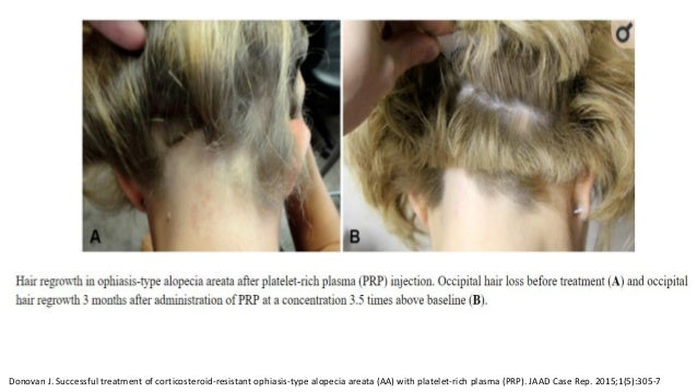 Donovan J. Successful treatment of corticosteroid-resistant ophiasis-type alopecia areata (AA) with platelet-rich plasma (...