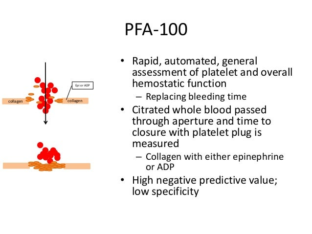 Platelet Aggregometry • Usually performed on platelet-rich plasma • Measures transmission of light through the solution fu...
