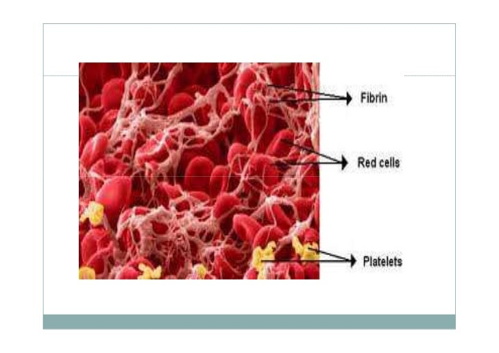 hematologic problems For nursing candidates looking for free nclex practice questions,  the client with hematologic health problems the client with respiratory health problems.