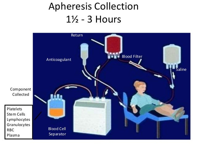 Apheresis Collection 1½ - 3 Hours Component Collected Anticoagulant Return Blood Filter Saline Blood Cell Separator Platel...
