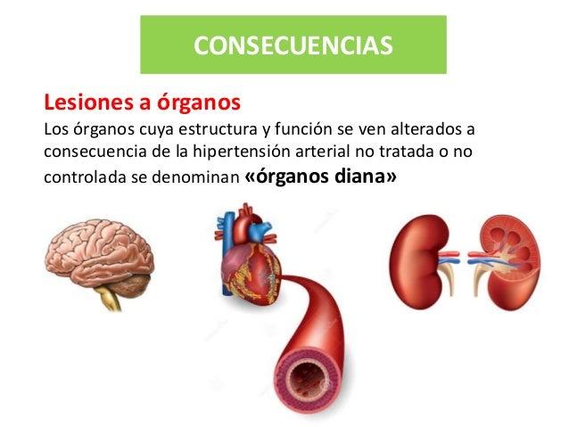 Platica hipertension arterial sistemica ciudad del anciano