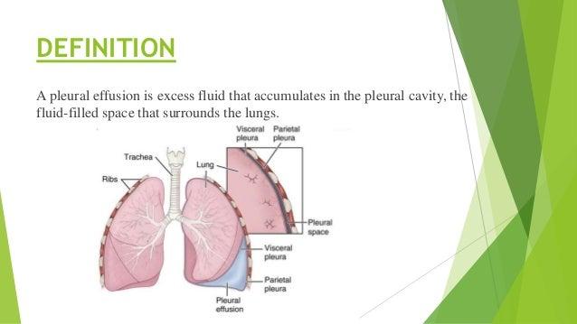Pleural effusion Slide 2