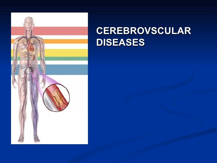 CEREBROVSCULARDISEASES