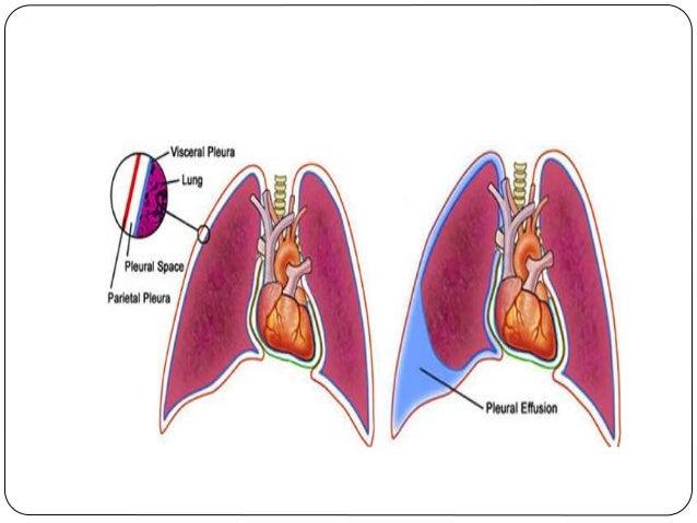 Pleura and pleural cavity copy