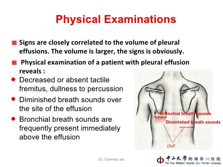 pleural effusions, Skeleton