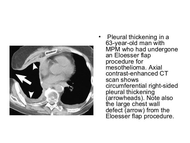 Pleural diseases chest radiology part 2