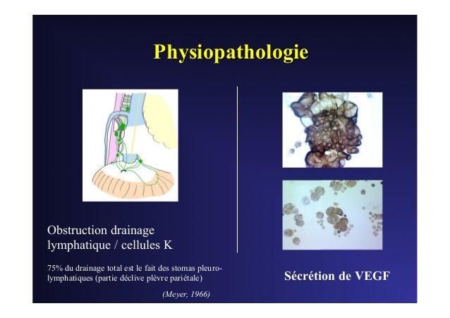 Pleuresie neoplasique metastatique - Metastatic pleural effusions in cancer Slide 3