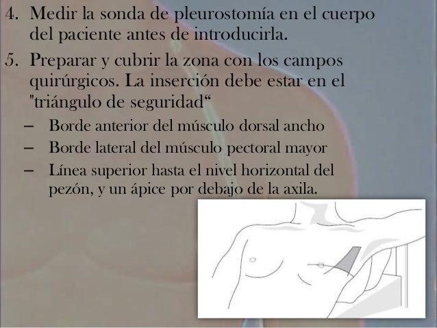 PLEUROTOMIA TECNICA QUIRURGICA DOWNLOAD