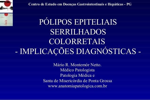 Centro de Estudo em Doenças Gastrointestinais e Hepáticas - PG  PÓLIPOS EPITELIAIS  SERRILHADOS  COLORRETAIS  - IMPLICAÇÕE...