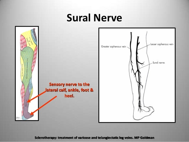 The Important Nerves During Venous Ablation