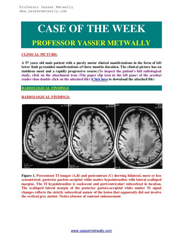 Professor Yasser Metwally www.yassermetwally.com  CASE OF THE WEEK PROFESSOR YASSER METWALLY CLINICAL PICTURE: A 57 years ...