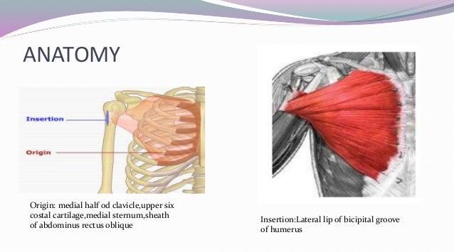 pmmc flap pec diagram